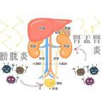 【発熱と腰痛に悶絶】腎盂腎炎の症状と治療方法は?!膀胱炎になったら要注意!