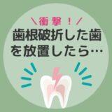 【衝撃】歯根破折した歯を抜かないで放置しておいた結果・・・