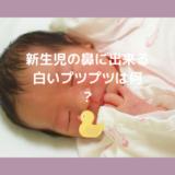 新生児の鼻に出来る白いプツプツ
